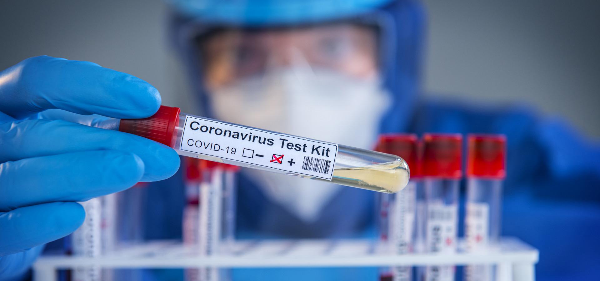 koronavirus-teszt-covid-jarvany